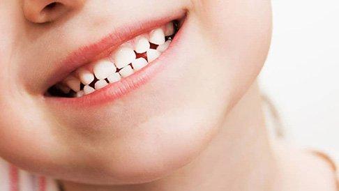 Răng sữa